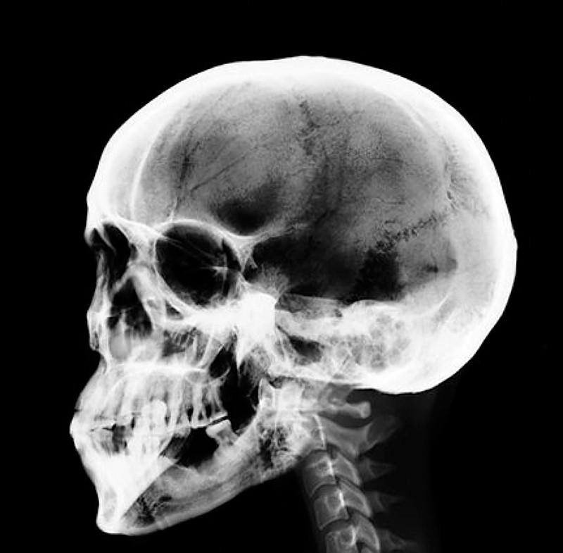 Рентген черепа