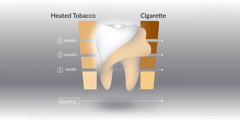 Как IQOS влияет на цвет зубов? Результаты эксперимента