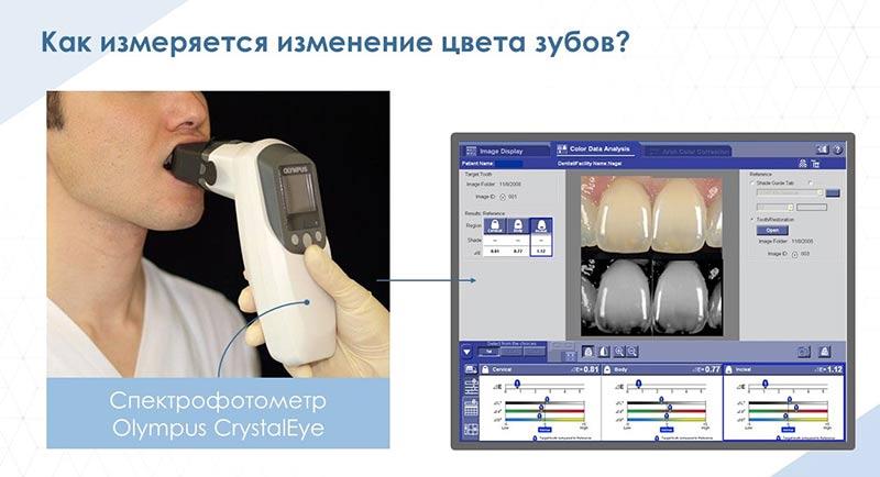 Как измеряется изменение цвета зубов?