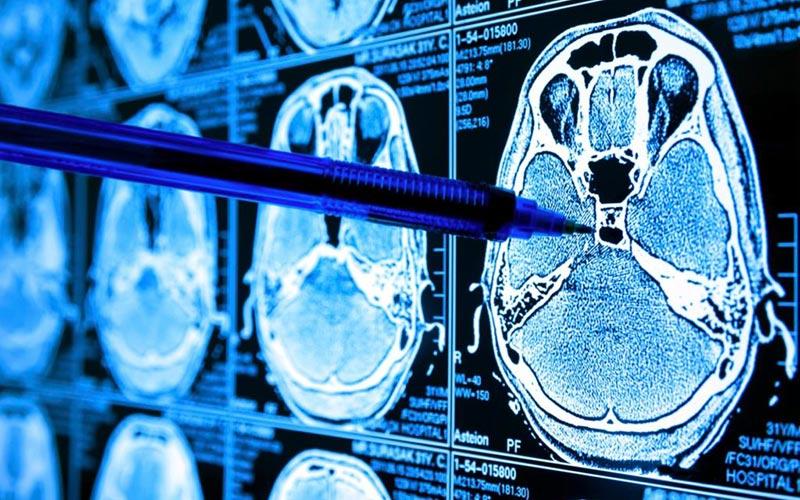 Снимки мозга фото